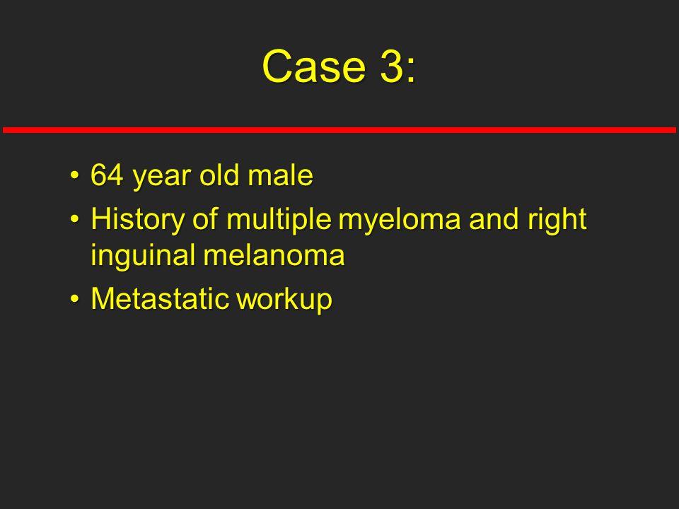 Case 3: 64 year old male History of multiple myeloma and right inguinal melanoma Metastatic workup