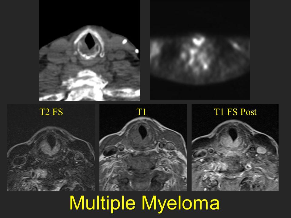 T2 FS T1 T1 FS Post Multiple Myeloma