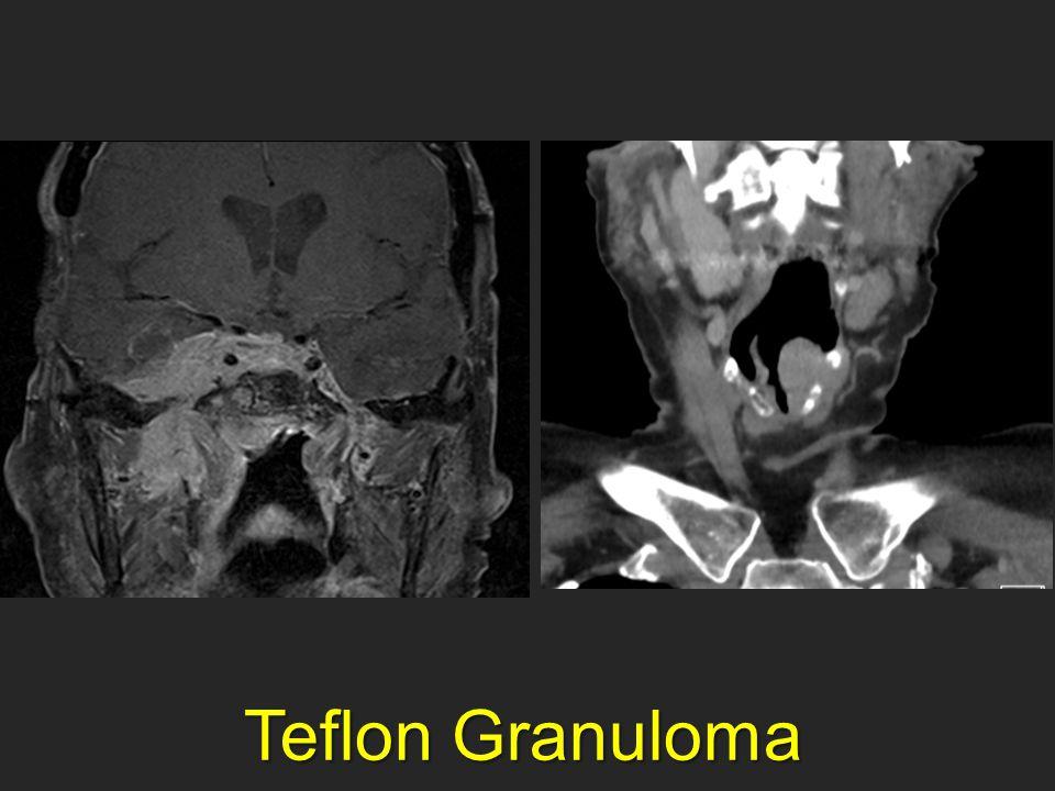 Teflon Granuloma