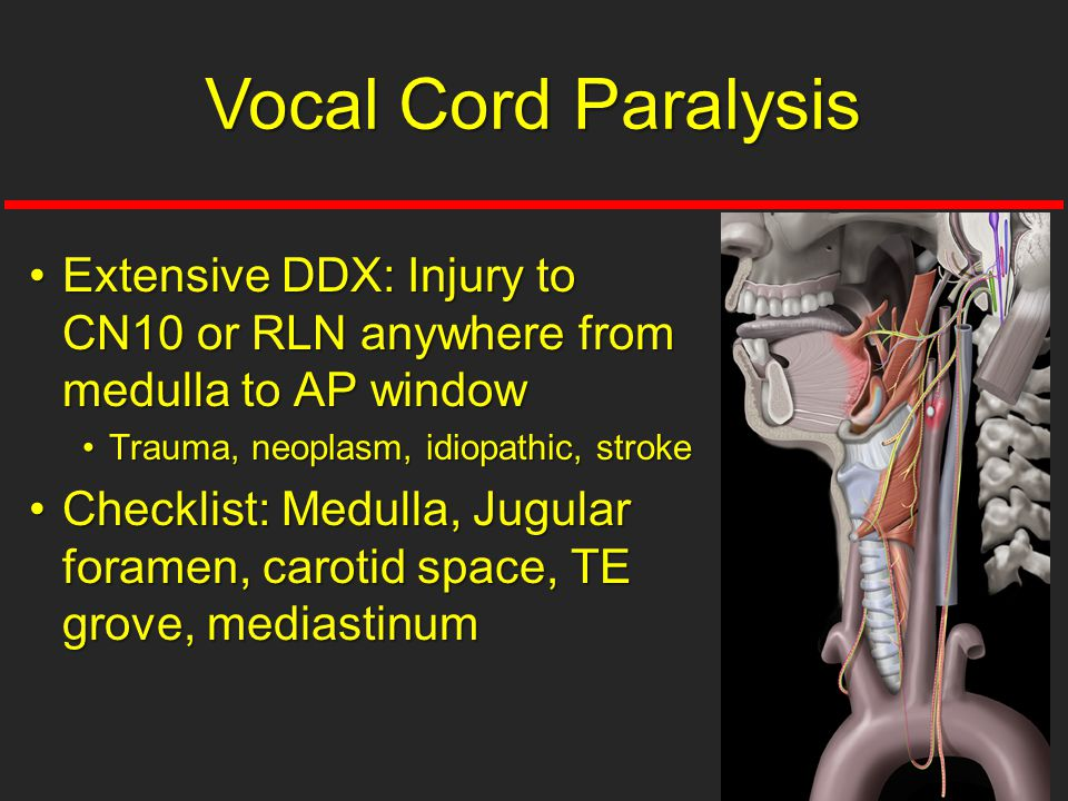 Vocal Cord Paralysis Extensive DDX: Injury to CN10 or RLN anywhere from medulla to AP window. Trauma, neoplasm, idiopathic, stroke.