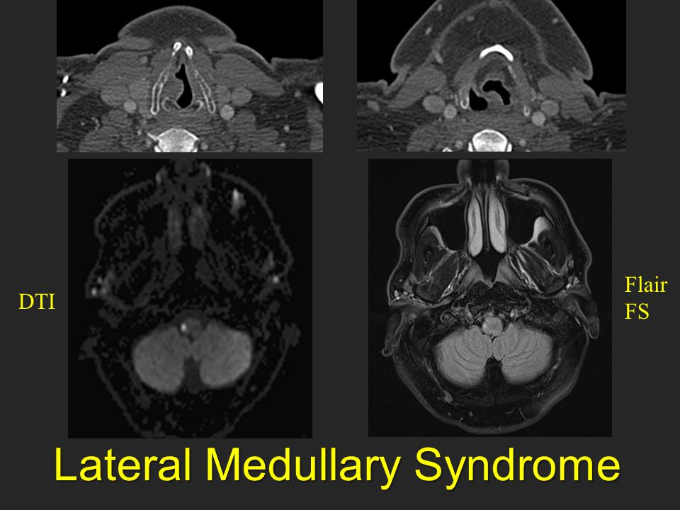 Lateral Medullary Syndrome