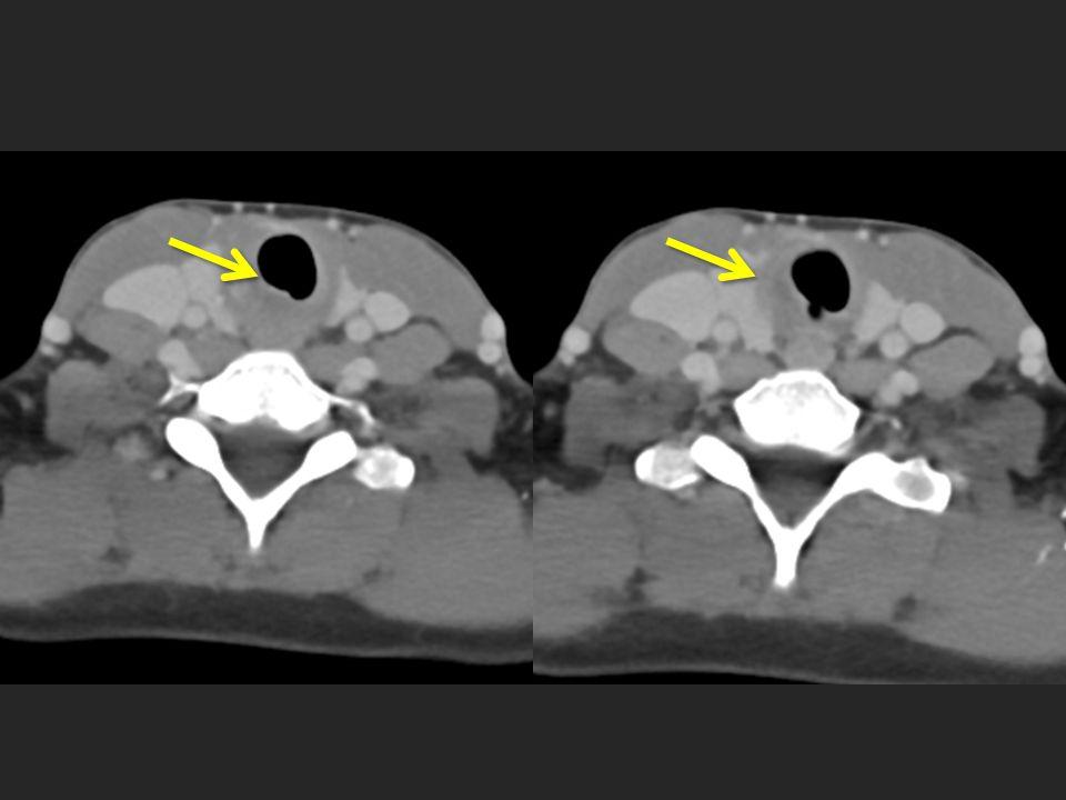 Green Arrow = irregular narrowing of subglottic larynx