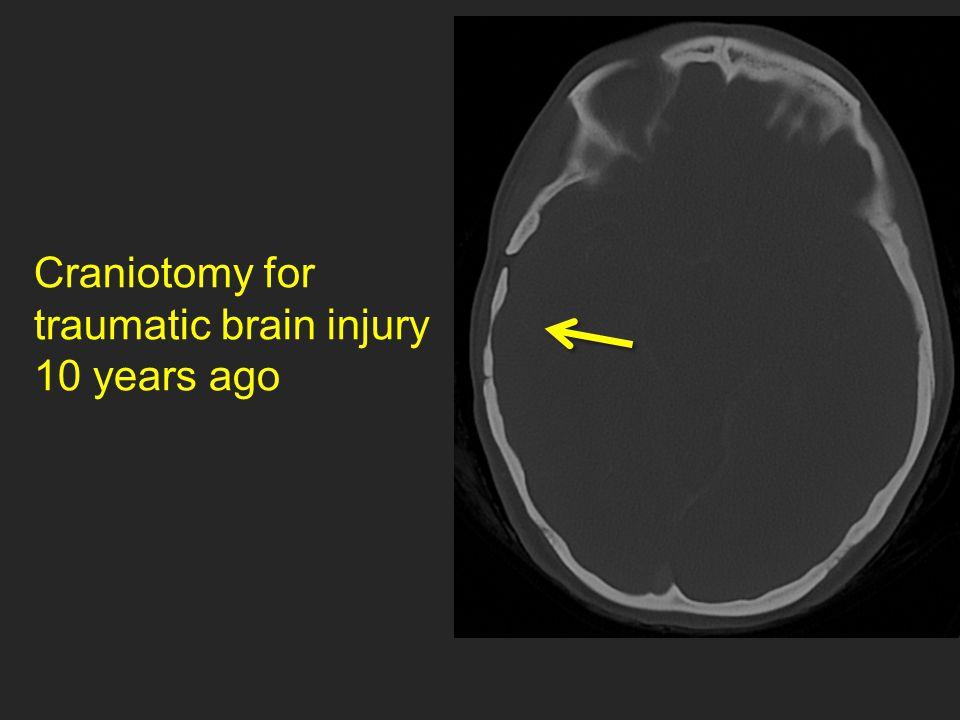 Craniotomy for traumatic brain injury 10 years ago