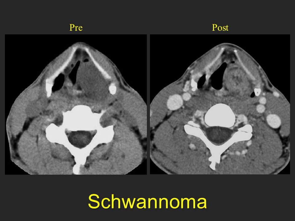 Pre Post Koonts showed. Just to remind Schwannoma