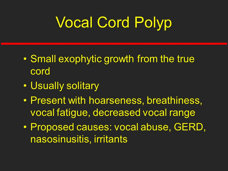 Vocal Cord Polyp Small exophytic growth from the true cord