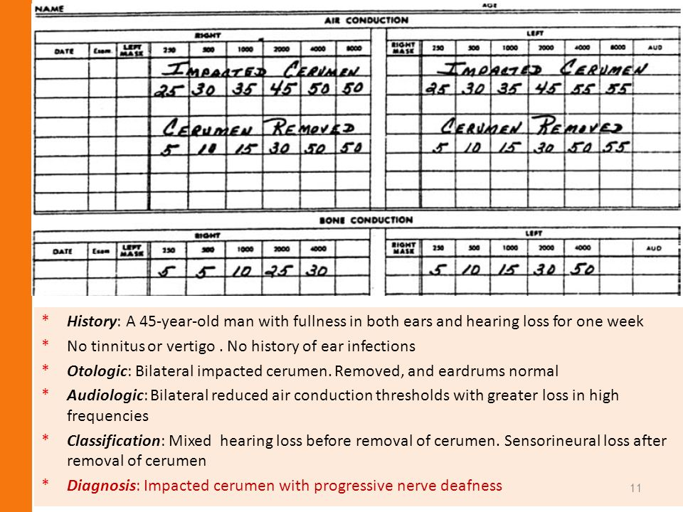 History: A 45-year-old man with fullness in both ears and hearing loss for one week