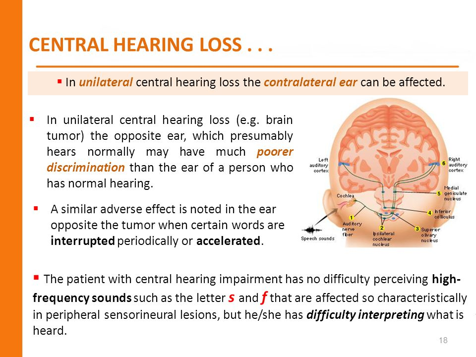 CENTRAL HEARING LOSS . . . In unilateral central hearing loss the contralateral ear can be affected.