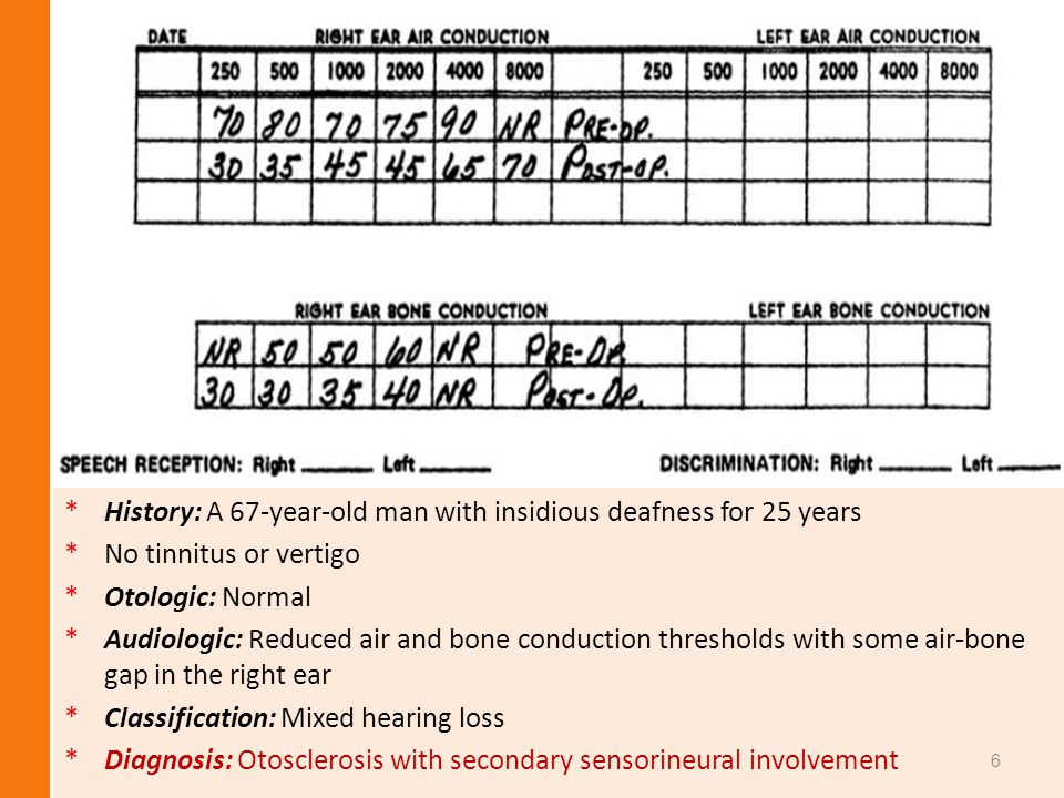 History: A 67-year-old man with insidious deafness for 25 years