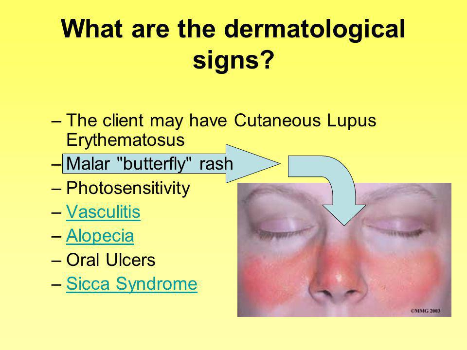 What are the dermatological signs