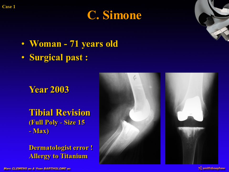 C. Simone Woman - 71 years old Surgical past : Year 2003