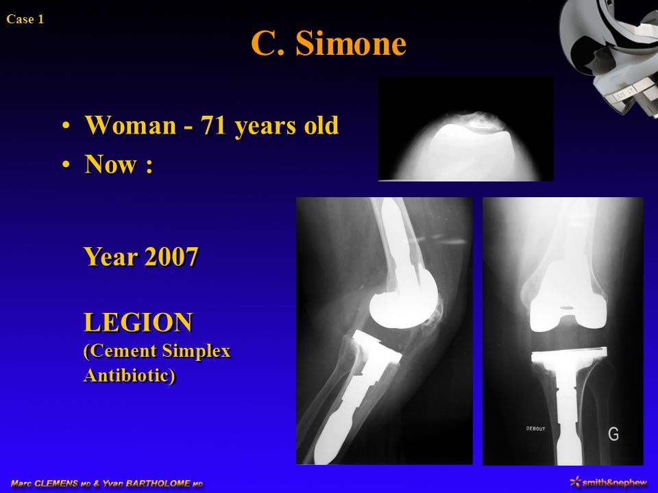C. Simone Woman - 71 years old Now : Year 2007