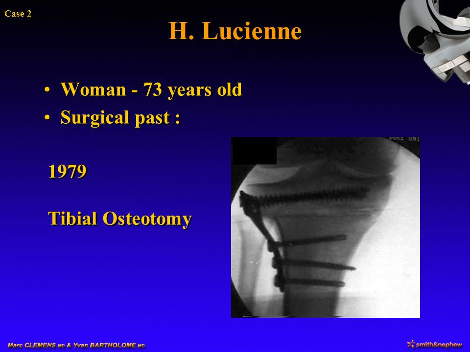H. Lucienne Woman - 73 years old Surgical past : 1979 Tibial Osteotomy