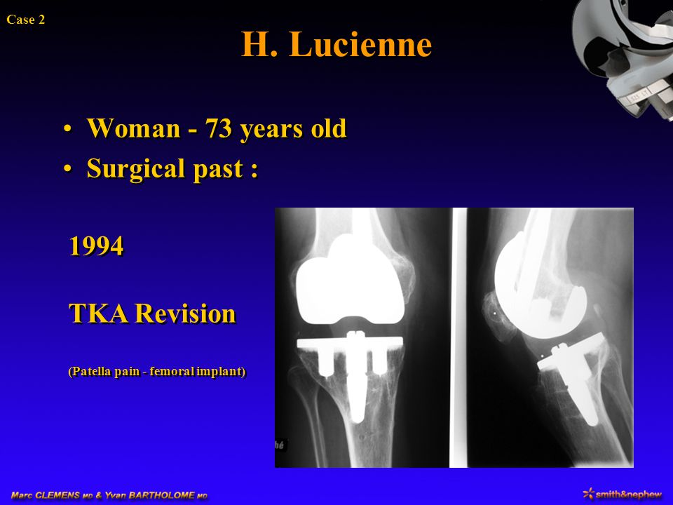 H. Lucienne Woman - 73 years old Surgical past : 1994 TKA Revision