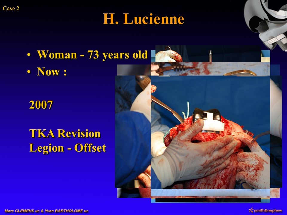 H. Lucienne Woman - 73 years old Now :