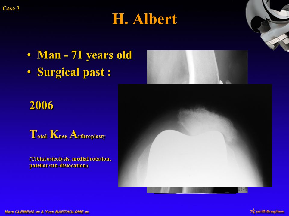 H. Albert Man - 71 years old Surgical past : 2006