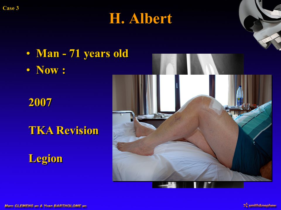 H. Albert Case 3 Man - 71 years old Now : 2007 TKA Revision Legion