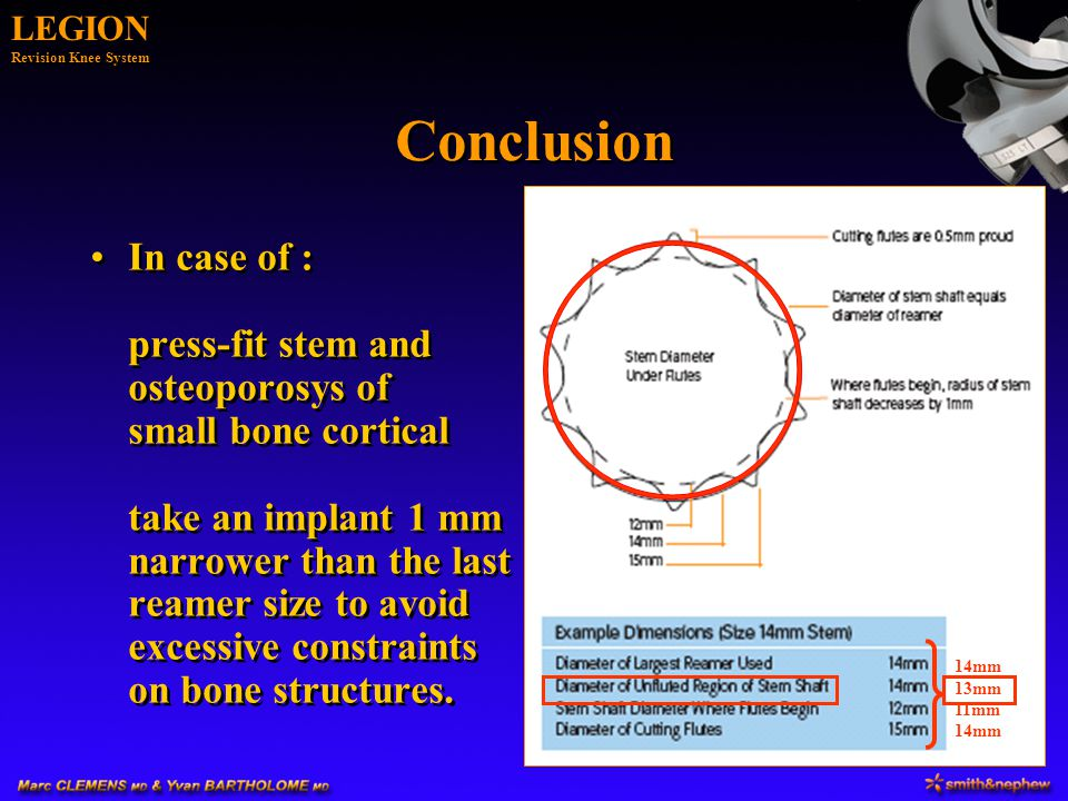 LEGION Revision Knee System