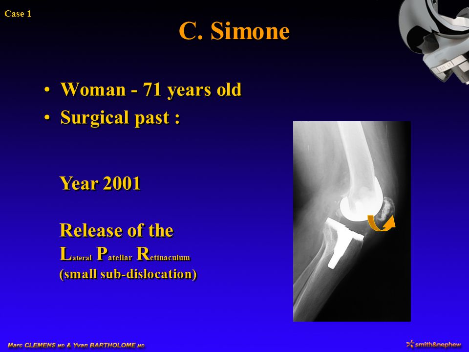 C. Simone Woman - 71 years old Surgical past :