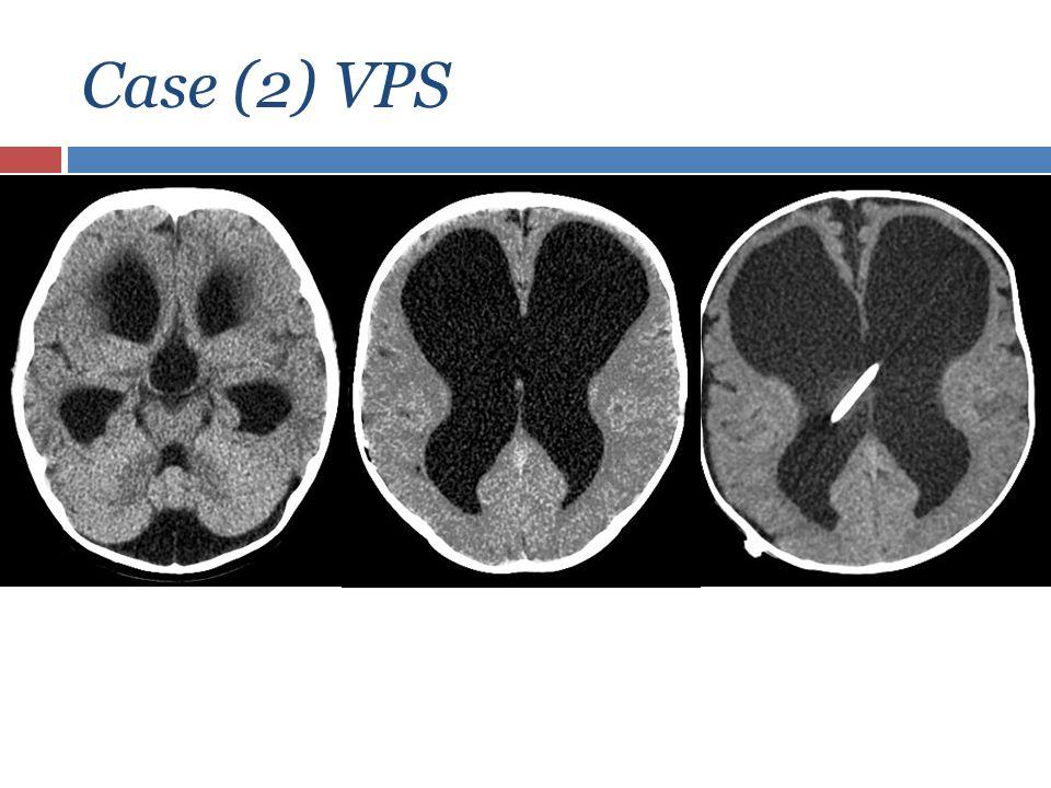 Case (2) VPS