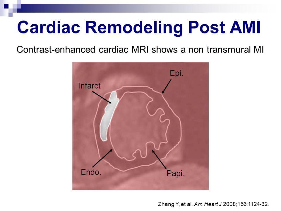Cardiac Remodeling Post AMI
