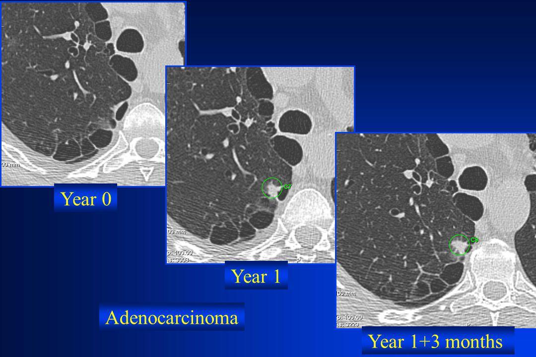 Year 0 Year 1 Adenocarcinoma Year 1+3 months