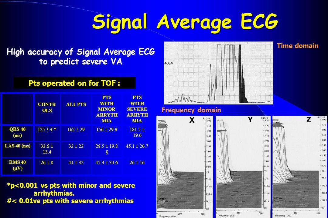 Signal Average ECG High accuracy of Signal Average ECG