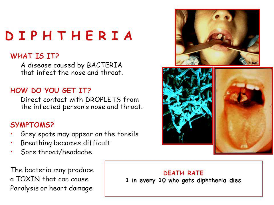 1 in every 10 who gets diphtheria dies