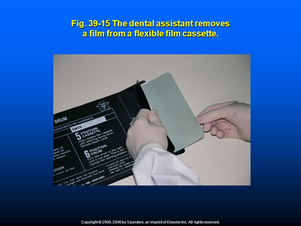 Fig. 39-15 The dental assistant removes a film from a flexible film cassette.