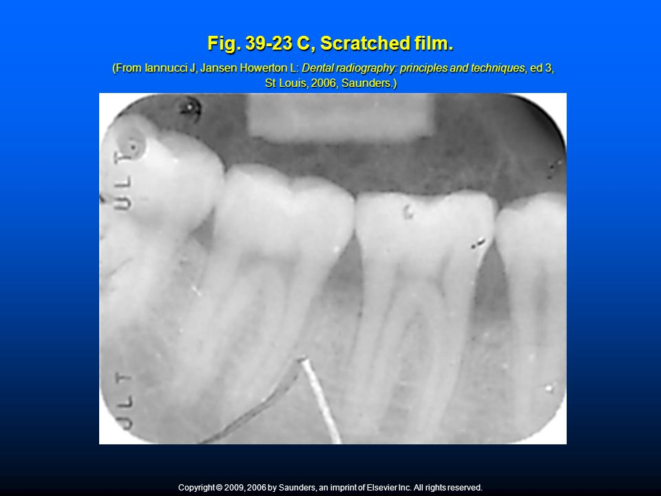 Fig. 39-23 C, Scratched film. (From Iannucci J, Jansen Howerton L: Dental radiography: principles and techniques, ed 3, St Louis, 2006, Saunders.)