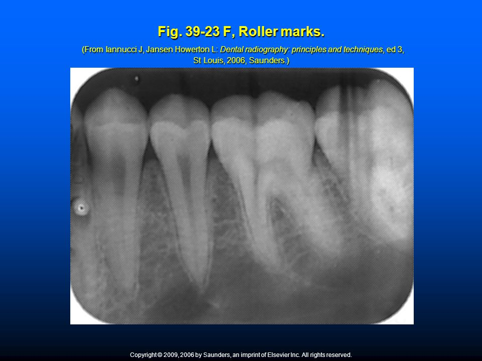 Fig. 39-23 F, Roller marks. (From Iannucci J, Jansen Howerton L: Dental radiography: principles and techniques, ed 3, St Louis, 2006, Saunders.)