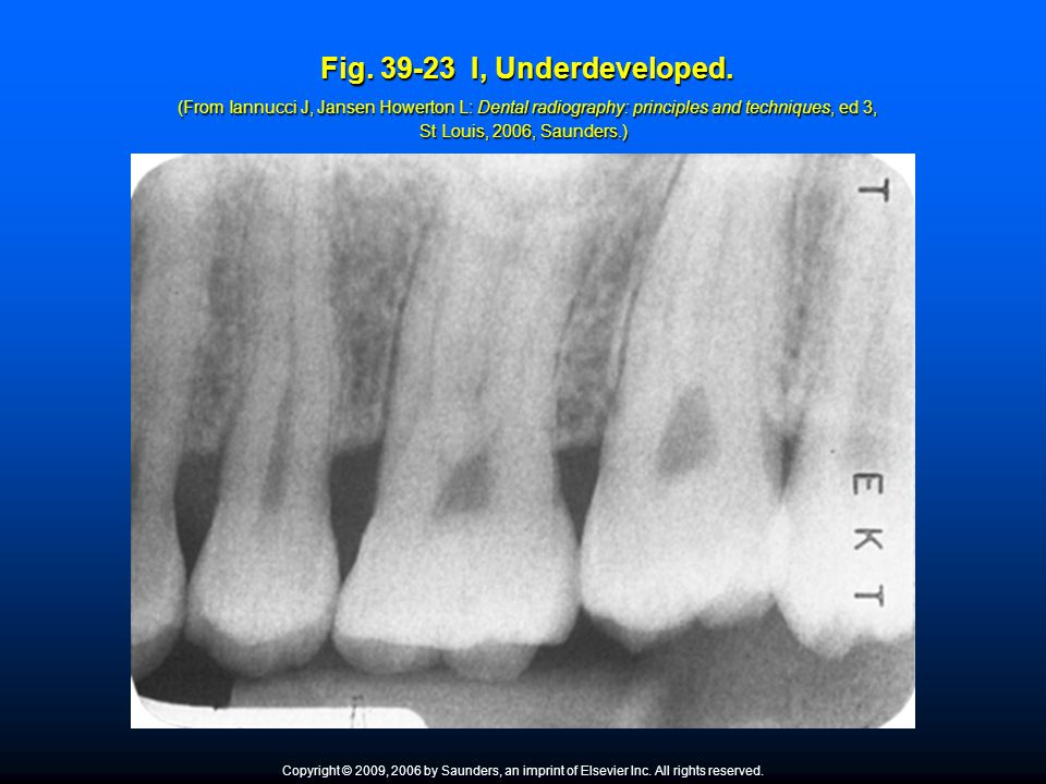 Fig. 39-23 I, Underdeveloped. (From Iannucci J, Jansen Howerton L: Dental radiography: principles and techniques, ed 3, St Louis, 2006, Saunders.)