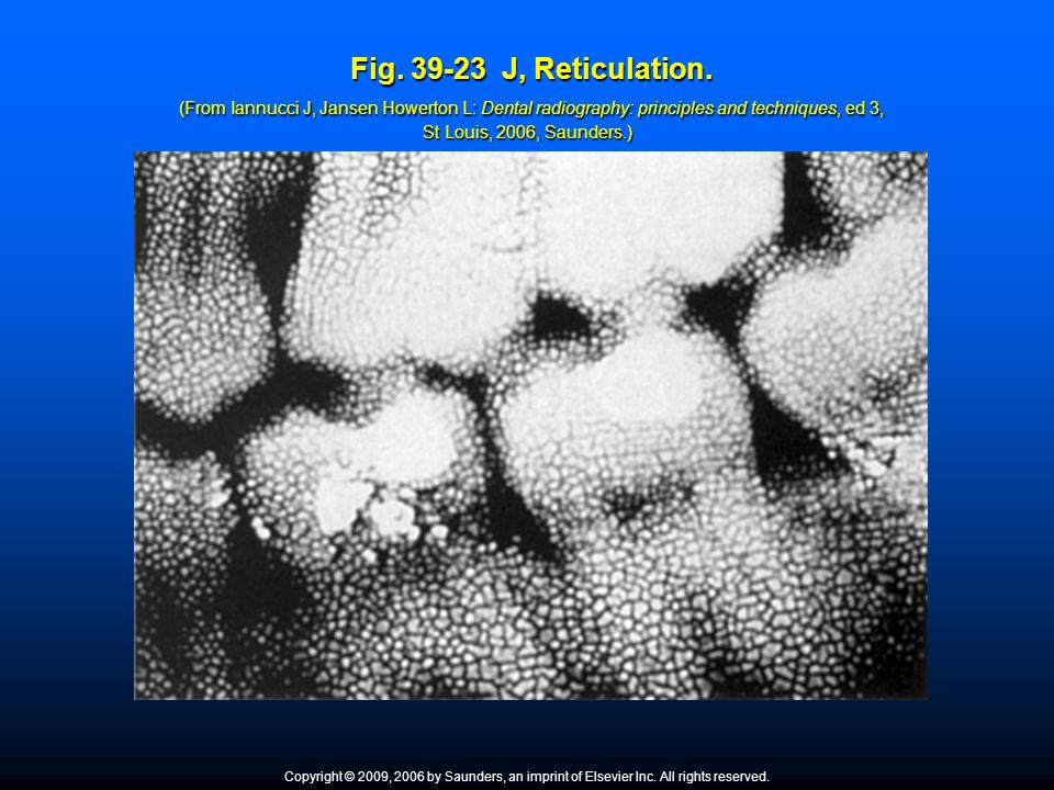 Fig. 39-23 J, Reticulation. (From Iannucci J, Jansen Howerton L: Dental radiography: principles and techniques, ed 3, St Louis, 2006, Saunders.)