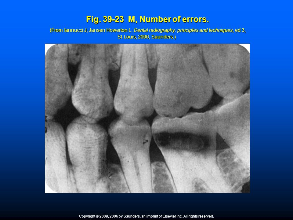 Fig. 39-23 M, Number of errors. (From Iannucci J, Jansen Howerton L: Dental radiography: principles and techniques, ed 3, St Louis, 2006, Saunders.)