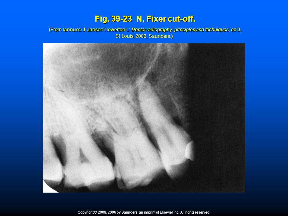 Fig. 39-23 N, Fixer cut-off. (From Iannucci J, Jansen Howerton L: Dental radiography: principles and techniques, ed 3, St Louis, 2006, Saunders.)