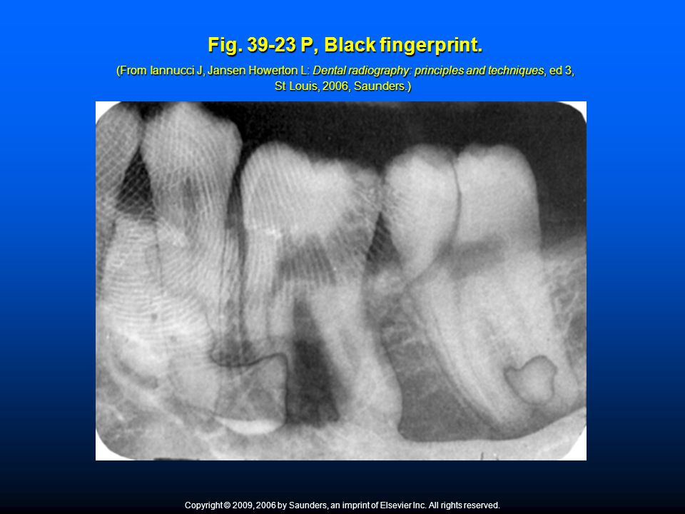 Fig. 39-23 P, Black fingerprint