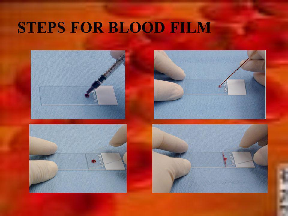 STEPS FOR BLOOD FILM