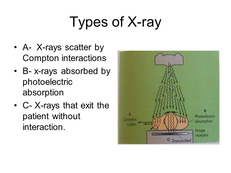 Types of X-ray A- X-rays scatter by Compton interactions