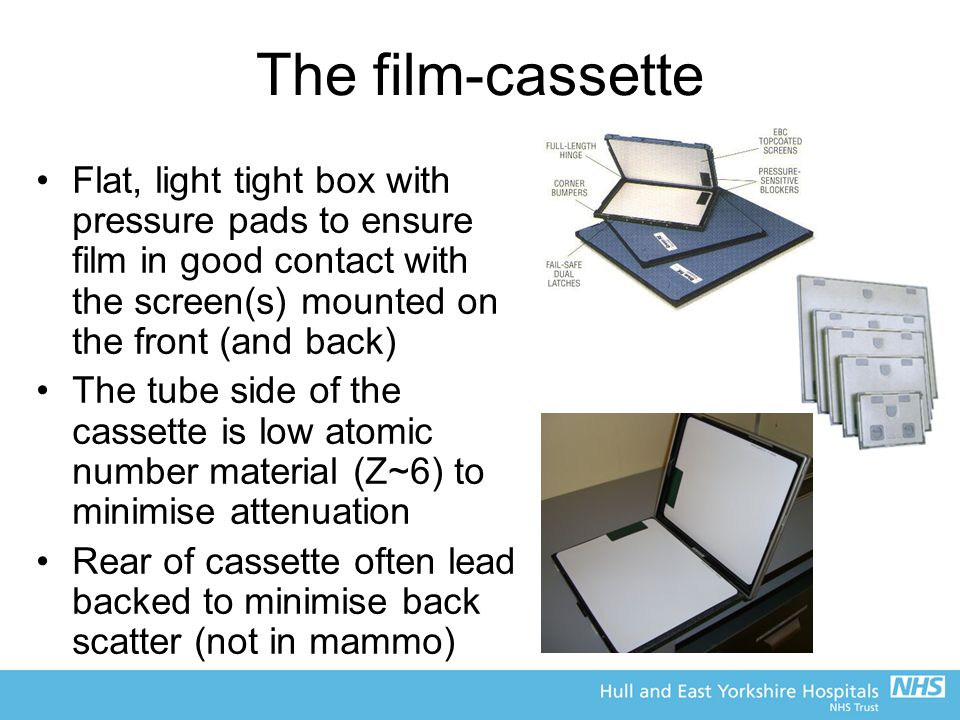 The film-cassette Flat, light tight box with pressure pads to ensure film in good contact with the screen(s) mounted on the front (and back)