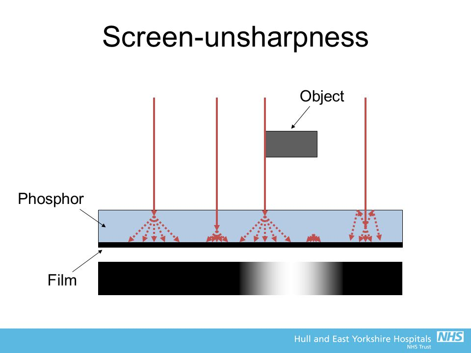 Screen-unsharpness Object Phosphor Film