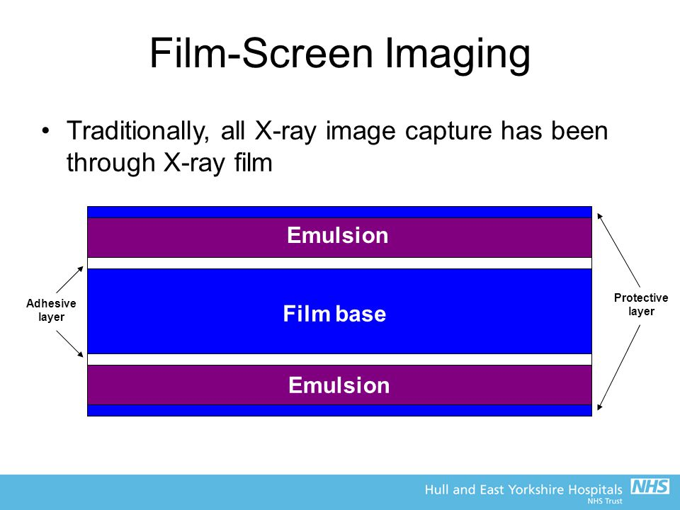 Film-Screen Imaging Traditionally, all X-ray image capture has been through X-ray film. Emulsion. Protective layer.