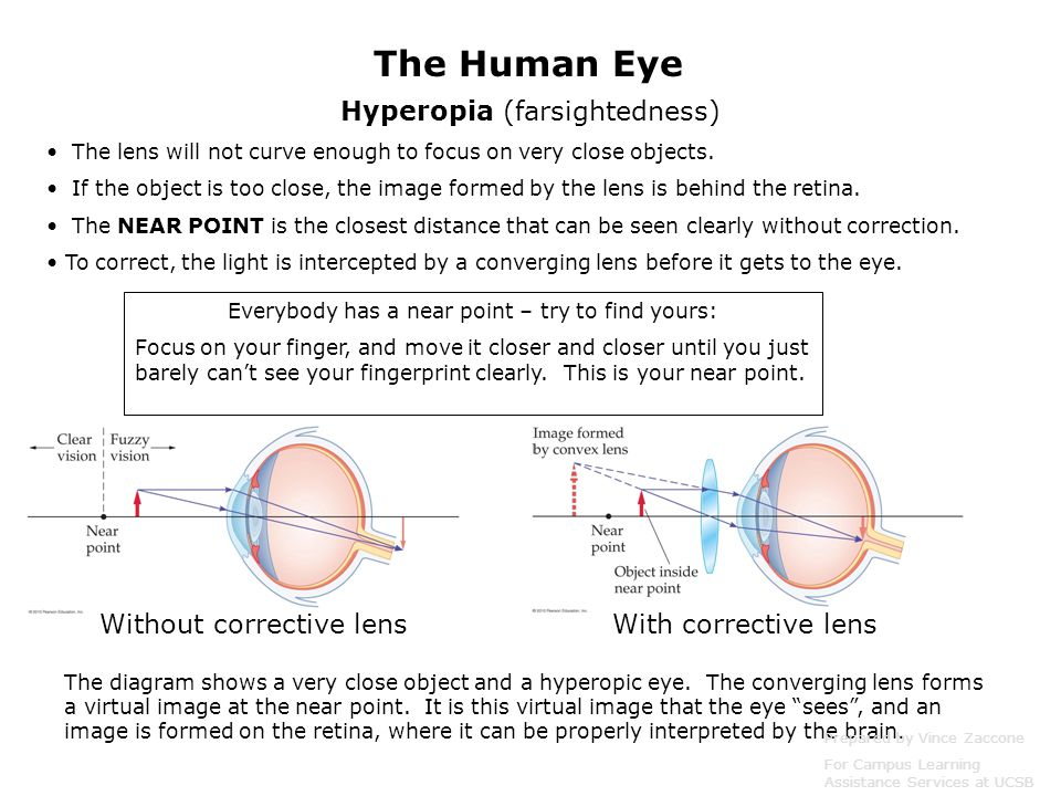 The Human Eye Hyperopia (farsightedness) Without corrective lens