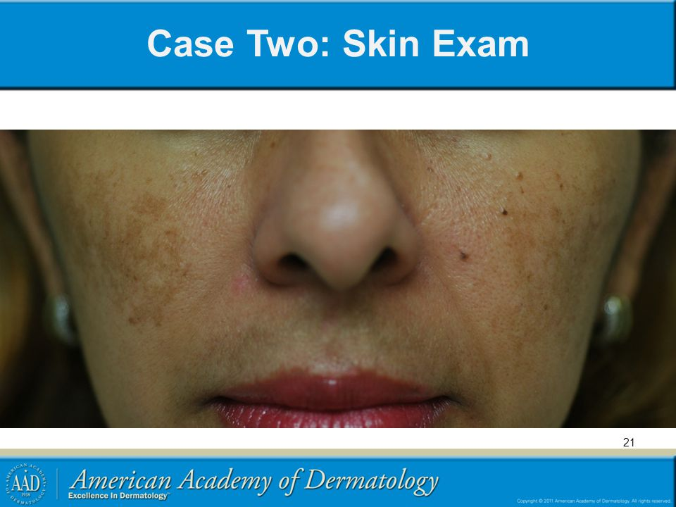Case Two: Skin Exam