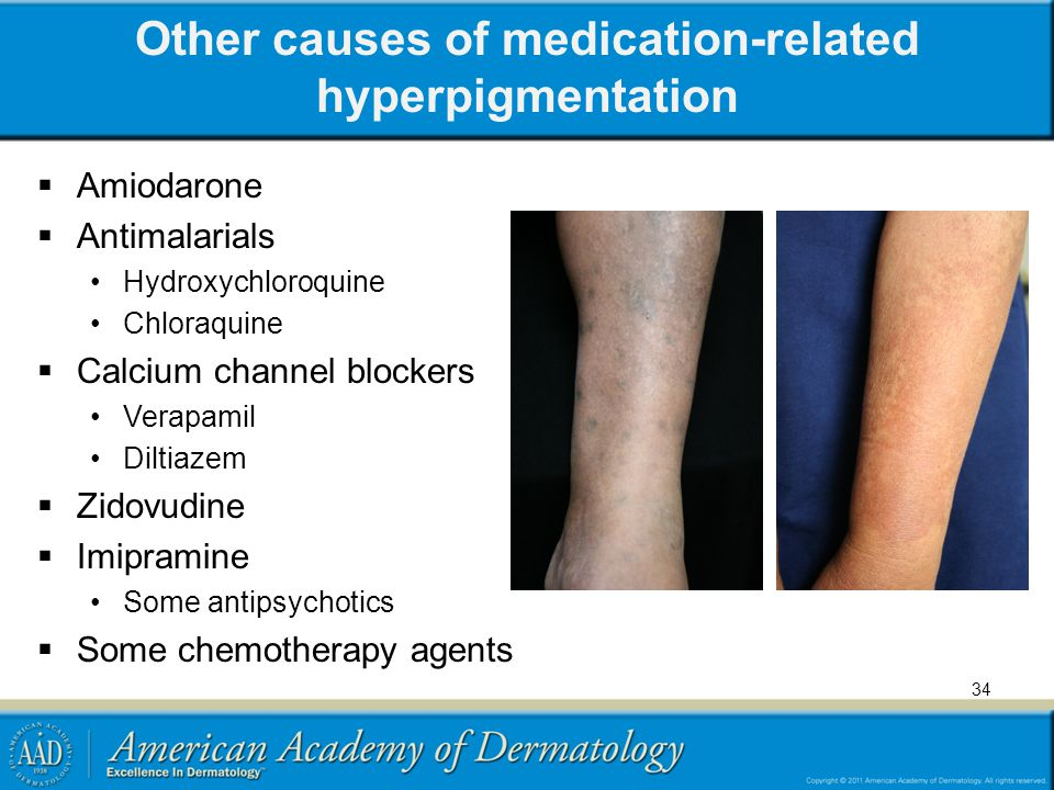Other causes of medication-related hyperpigmentation
