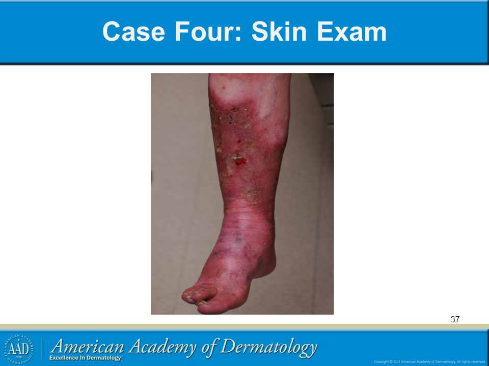 Case Four: Skin Exam