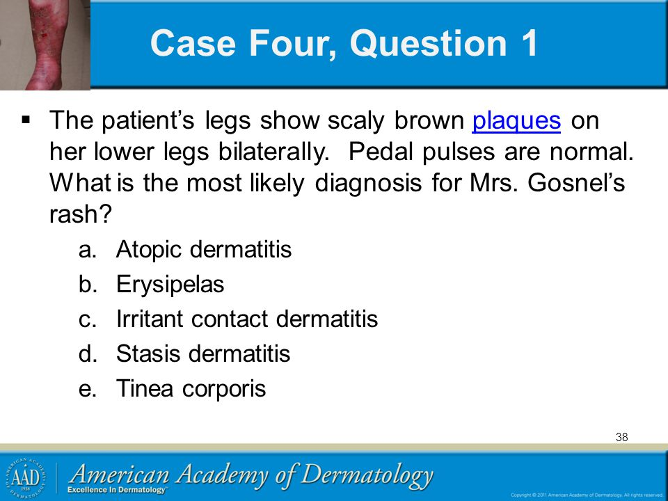 Case Four, Question 1