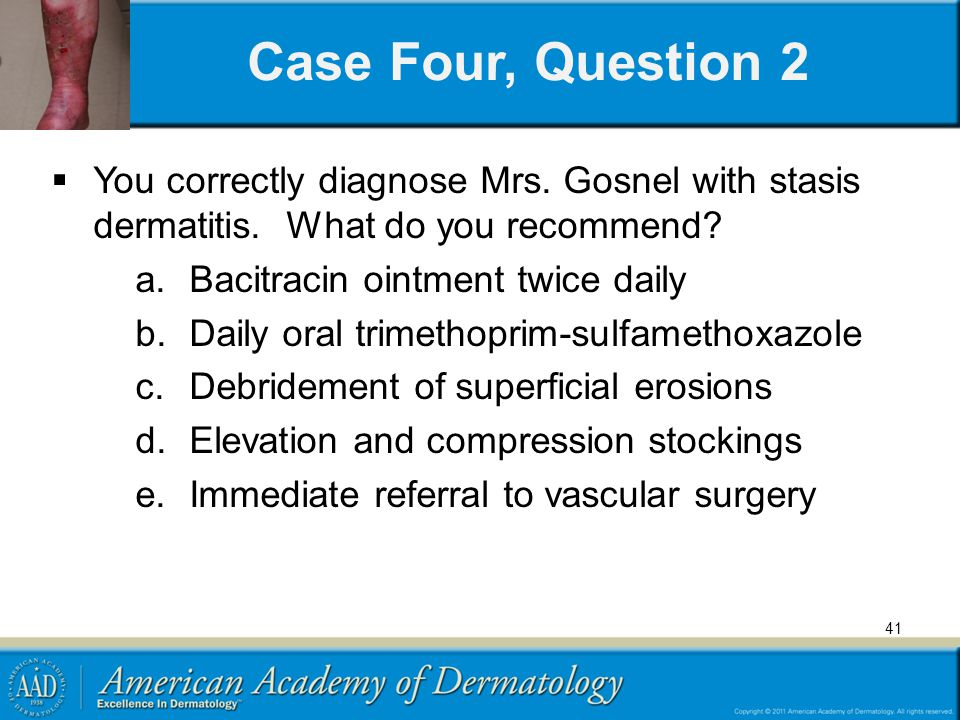 Case Four, Question 2 You correctly diagnose Mrs. Gosnel with stasis dermatitis. What do you recommend