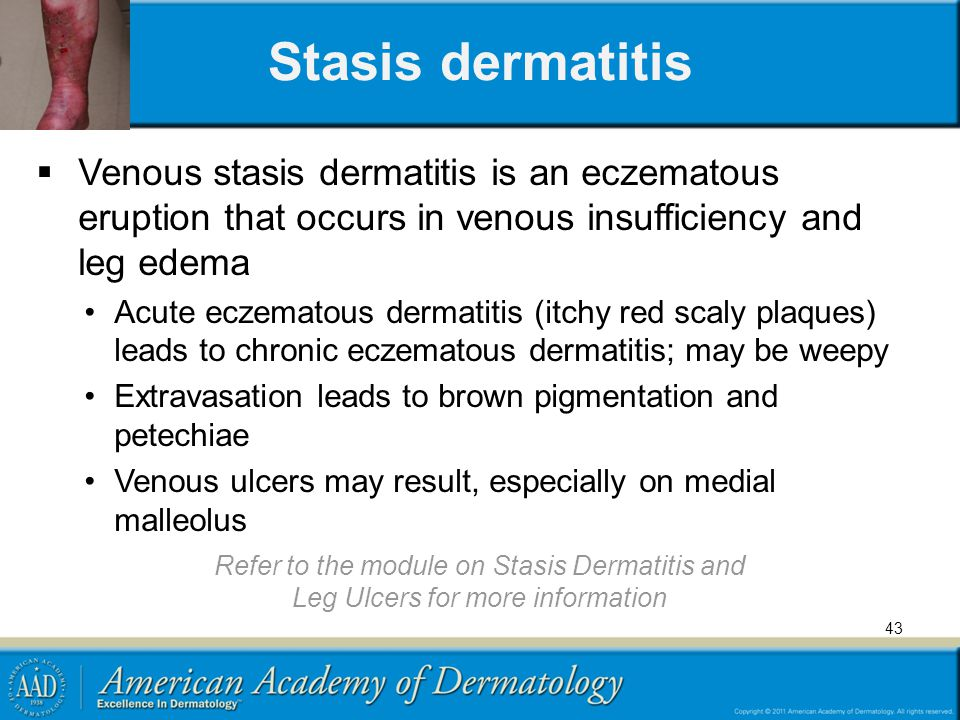Stasis dermatitis Venous stasis dermatitis is an eczematous eruption that occurs in venous insufficiency and leg edema.