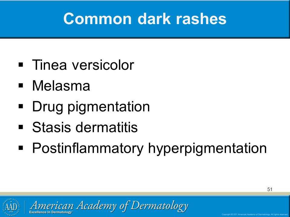 Common dark rashes Tinea versicolor Melasma Drug pigmentation