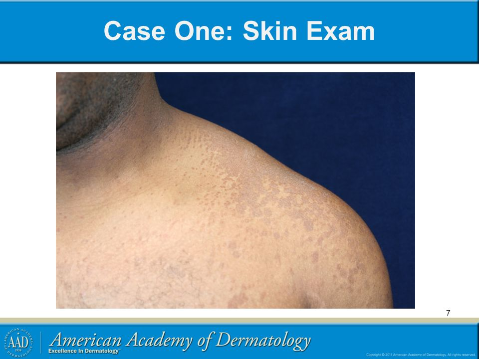 Case One: Skin Exam