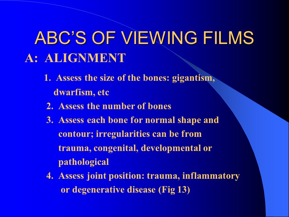 ABC'S OF VIEWING FILMS A: ALIGNMENT